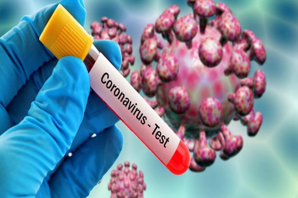 مطالعه ملی ثبت اطلاعات بالینی بیماران مبتلا به کرونا طراحی شد